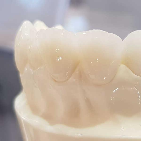 Zahnarzt Oberursel Dr Mareike Buzello Ästhetische Zahnheilkunde Bild 1
