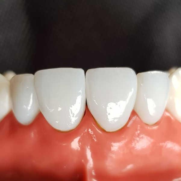 Zahnarzt Oberursel Dr Mareike Buzello Ästhetische Zahnheilkunde Bild3
