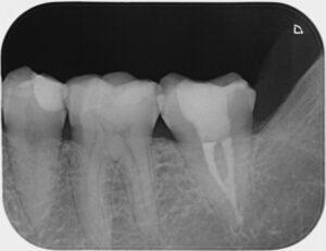 Zahnarzt Oberursel Dr Mareike Buzello Endodontie Röntgenbild1