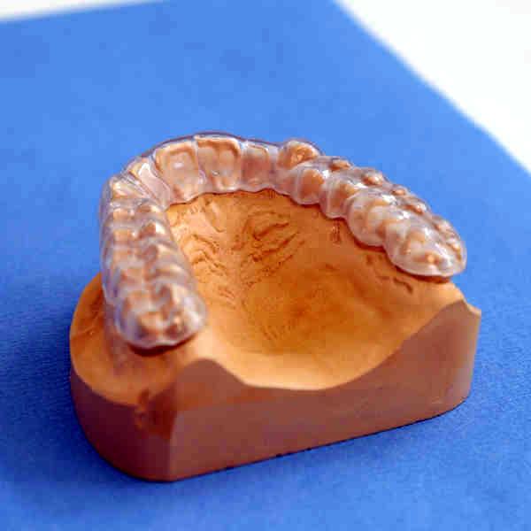 Zahnarzt Oberursel Dr Mareike Buzello Schienen-Therapie Bild2